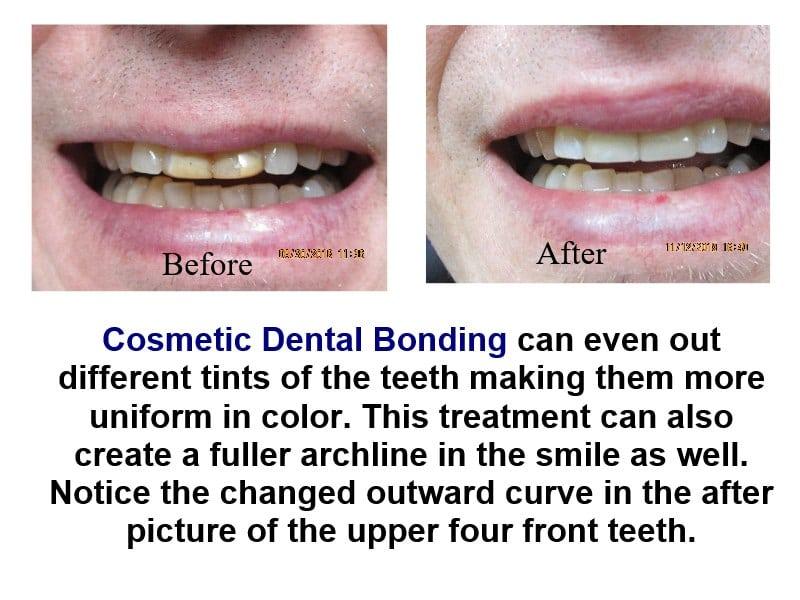 Dental Bonding with Acrylic is less ex-pensive than porcelain veneers.