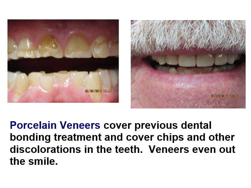 Porcelain veneers hide chips and discolorations of your teeth.