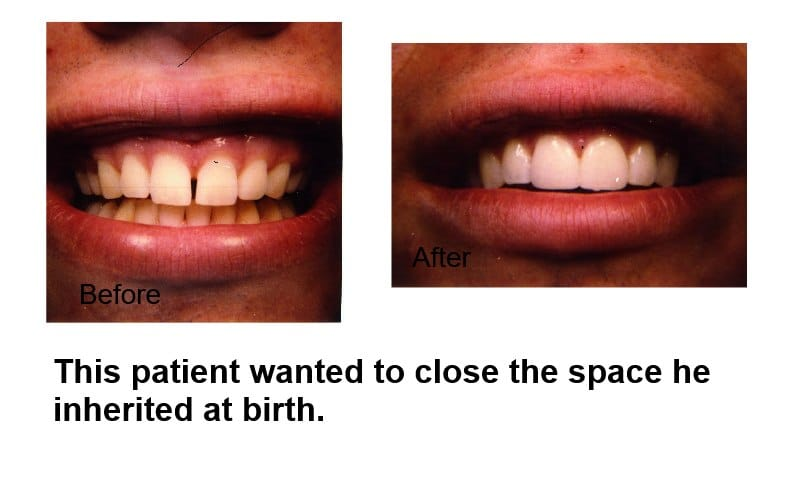 Closing unwanted spaces is available through veneers or crowns