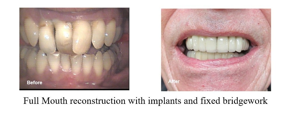 Look what can happen with a complete smile makeover.