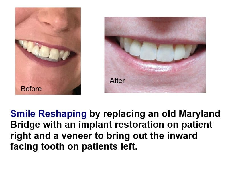 Reshape your smile with a veneer  to bring that recessed tooth into your smile line.