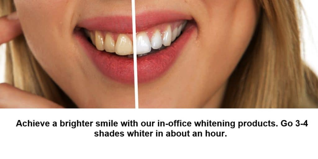 Teeth whitening is a common upgrade for cosmetic appearance of your teeth.